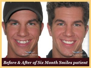 Actual before and after photo of a six month smiles patient
