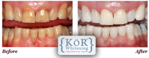 before and after of a kor whitening patient